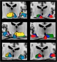 Investigadores do INESC TEC lideram descoberta que ajuda à identificação de subestruturas cerebrais com relevância neurocirúrgica