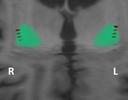 DBS – Estimulação Cerebral Profunda